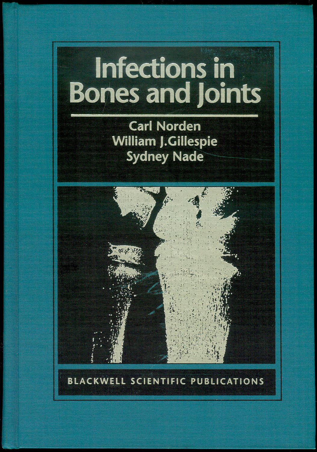 Image for Infections in Bones and Joints